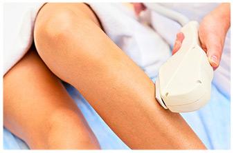 depilatore laser su gambe