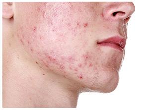 irritazione pelle viso ragazzo