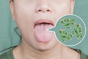 lingua batteri
