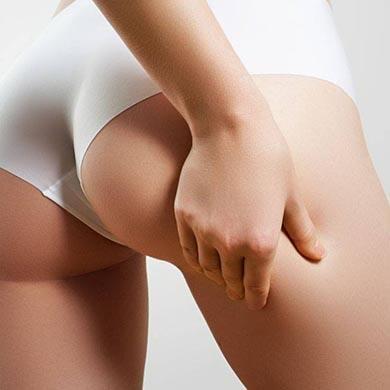 Tutto quello che devi sapere sulla Cellulite