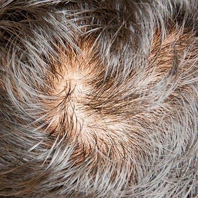 Cos'è l'alopecia e come si manifesta