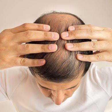 Scala Hamilton-Norwood e perdita di capelli
