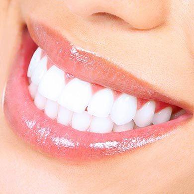 Perché la cura dei denti è importante?