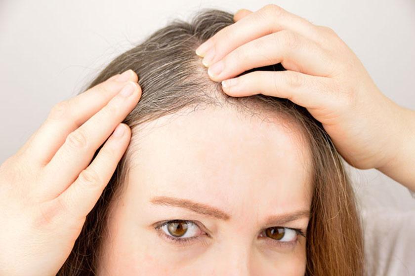 capelli bianchi rimedi e cause